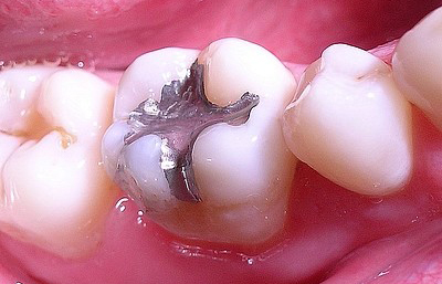 Zahnfüllungen aus Amalgam