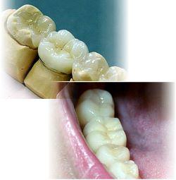 Zahnfüllungen Kunststoff
