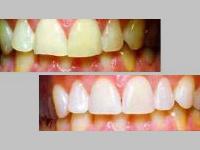 Bleaching für die Zähne