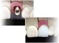 Zahnimplantate